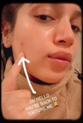 Bhumi Pednekar shares her pimple woes